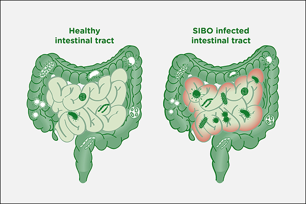 Small Intestinal Bacterial Overgrowth (SIBO)
