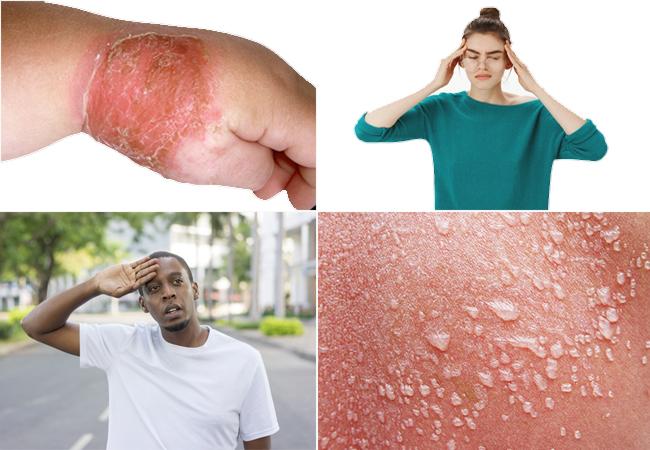 Impetigo and Cellulitis