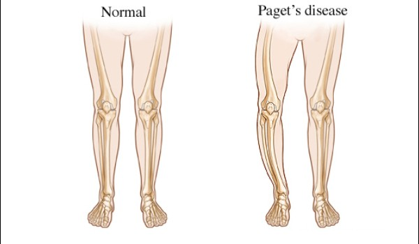 pagets-disease