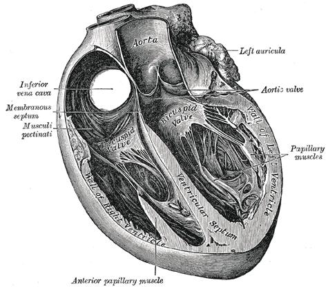 Acyanotic Congenital