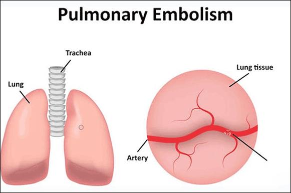 Pulmonary Thromboembolism Hypoxemia