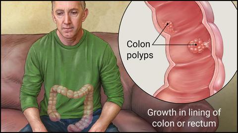 rectal polyps