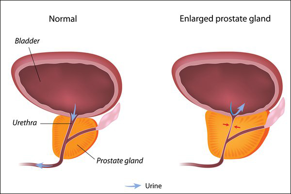 enlarged prostate disease