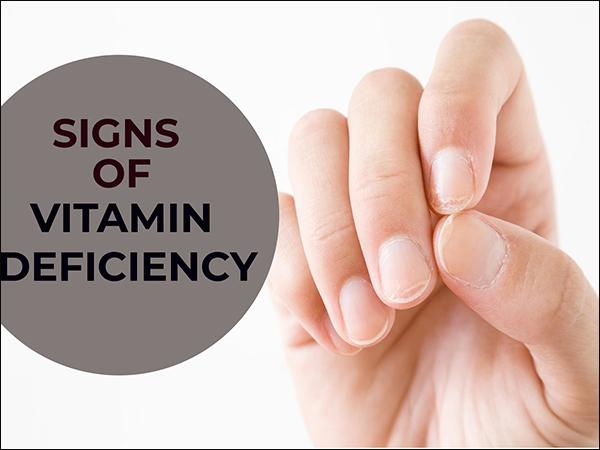 vitamin-deficiency